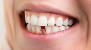 implant dentar la oferta